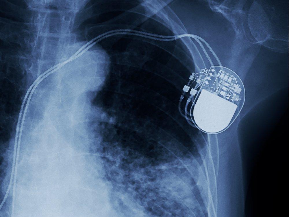 Deze batterijen kunnen je leven redden